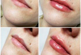 Powiększanie ust2