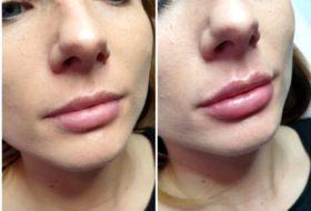 Powiększanie i modelowanie ust kwasem hialuronowym